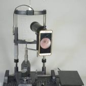 Mydriatric Fundus Camera without Mobile Phone